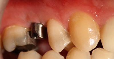 Dental implants cork, Ireland